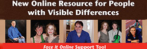 Face It Online support